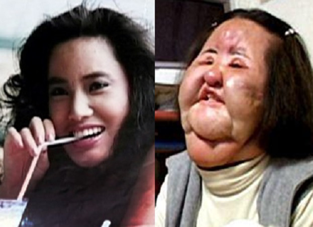 Korean Model Mangles Her Face By Injecting It With Cooking Oil After Doctors Refused To Do Plastic Surgery  peculiarmagazine
