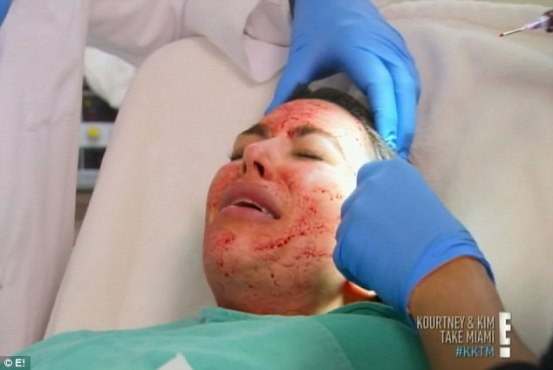 Kim K gets Vampire Facial, an age-defying facelift using her blood